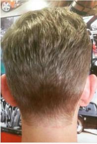 Hairline straight across the neck